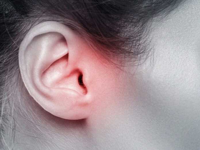 lesser-known hearing disorders