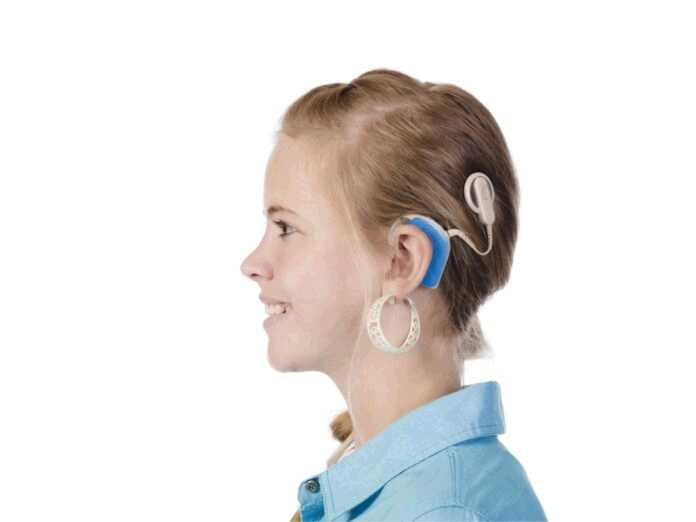 cochlear implants positively affect brain circuits