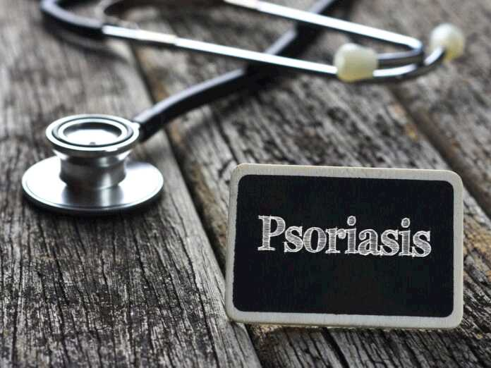 can psoriasis affect your hearing