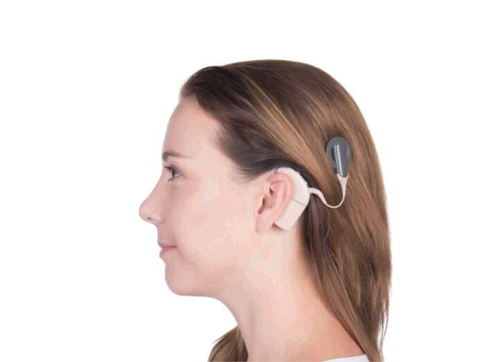 one cochlear implant or two